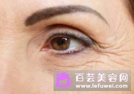 下垂眼有几种 怎么提升