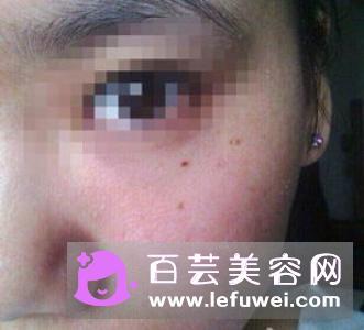 皮肤干燥容易长斑吗 怎么办