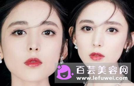 鼻部整形手术材料,四种常见鼻整形材料